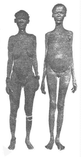 wikipedia Khoisan women with pendulous labia visibleより
