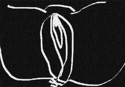 【完成】セックスで痛みを感じるのは、膣の位置が関係? 性交痛の軽減と対策を考えるの画像1