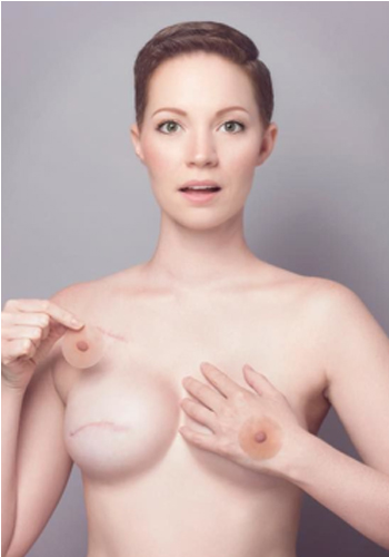 「 My Breast Choice」HPより
