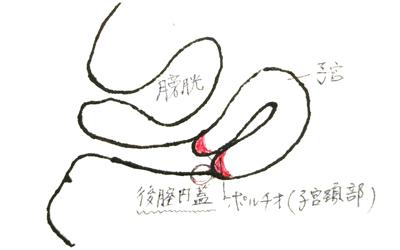 この部分が「後膣円蓋」!